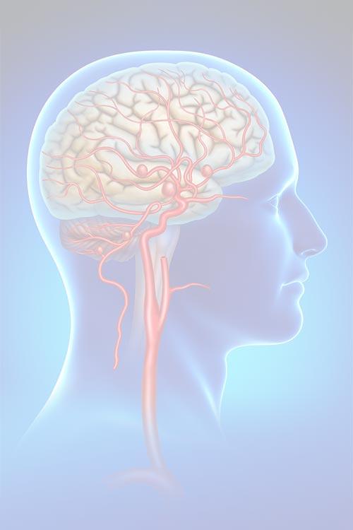 Brain Aneurysm - Image